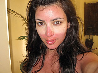 Kim Kardashian sunburn, sunburn relief, big apple BBQ block party, event horizon exhibit NYC, Manhattan Aesthetic Surgery, MAS