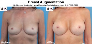 Plastic surgeon new york, breast enlargement new york