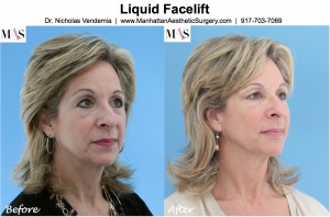 Plastic surgeon new york, liquid facelift new york