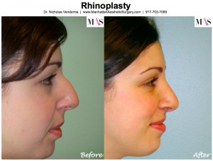 Plastic surgeon new york, rhinoplasty new york