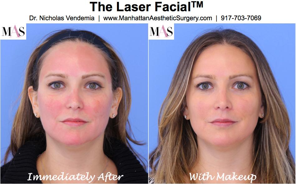 Best Mineral Makeup After Laser