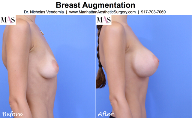 BREAST AUG 45R Side