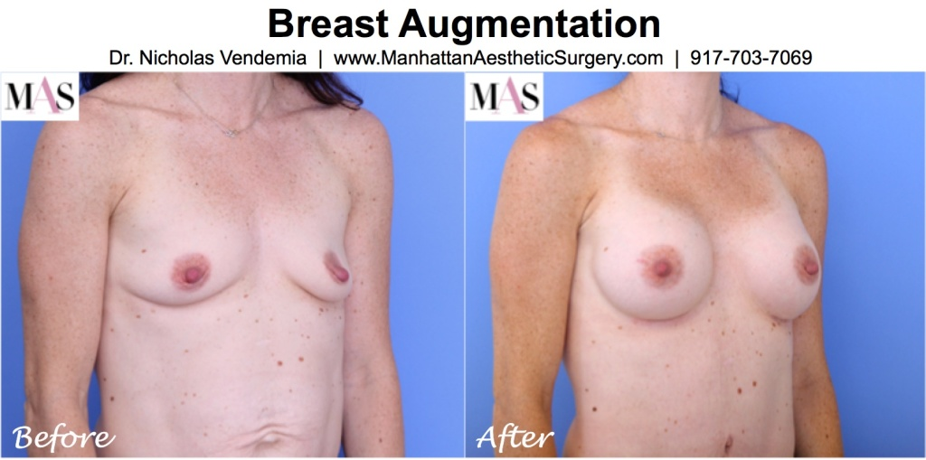 BREAST-AUG-55R-1024x509
