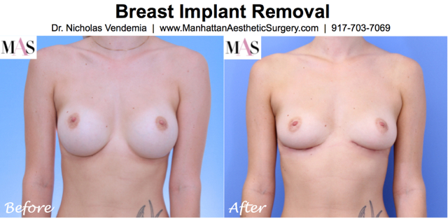 Breast Implant Removal 1