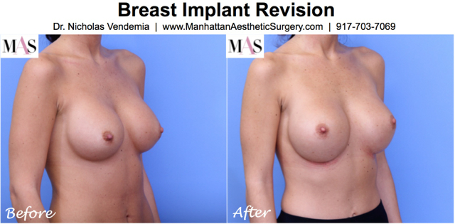 Breast Revision 17R