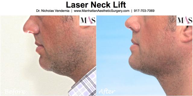 Laser Neck Lift 1a
