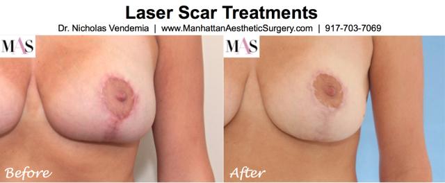 Laser Scar Treatment 1a