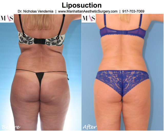 Liposuction 4e