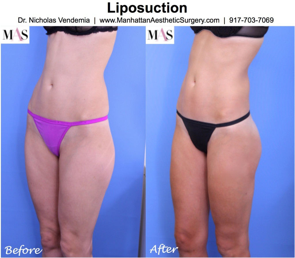 Liposuction-6L-1024x895 (1)