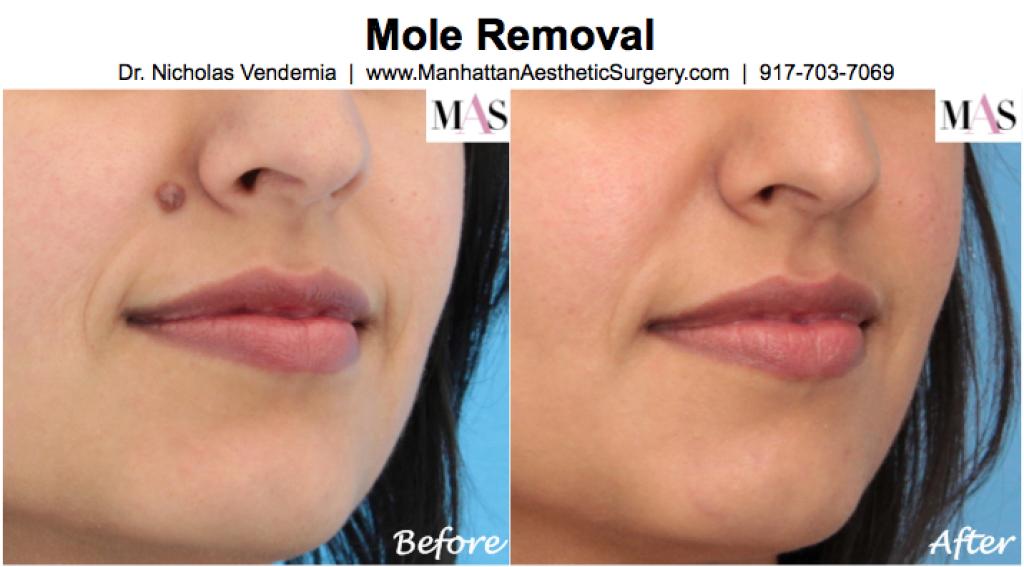 Mole-Removal-11-1024x567