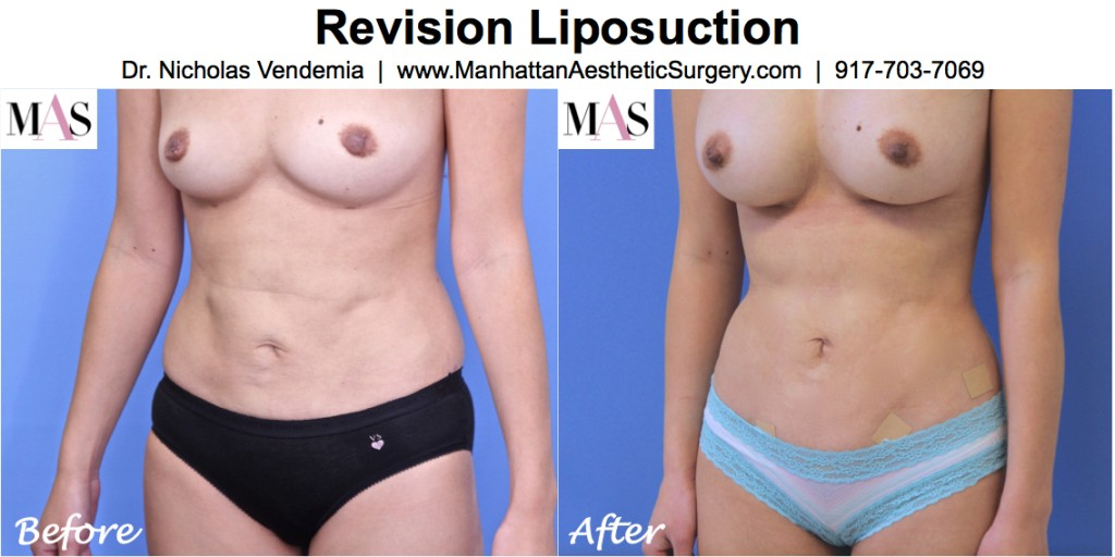 Revision-LIposuction-1L-1024x512