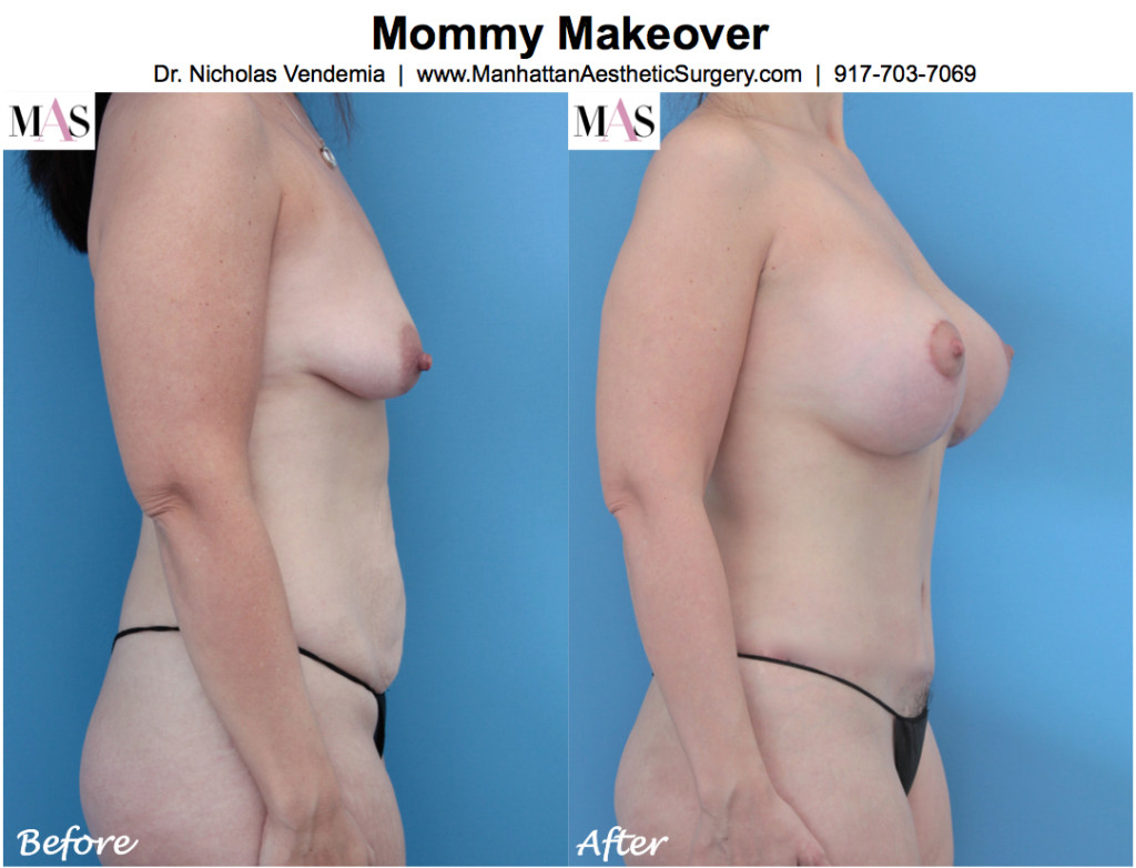 mommy-makeover-4